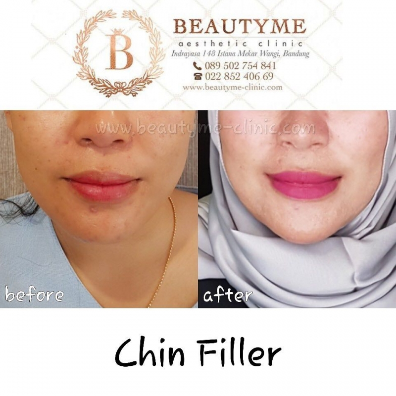 Gallery Filler Dagu / Chin Filler